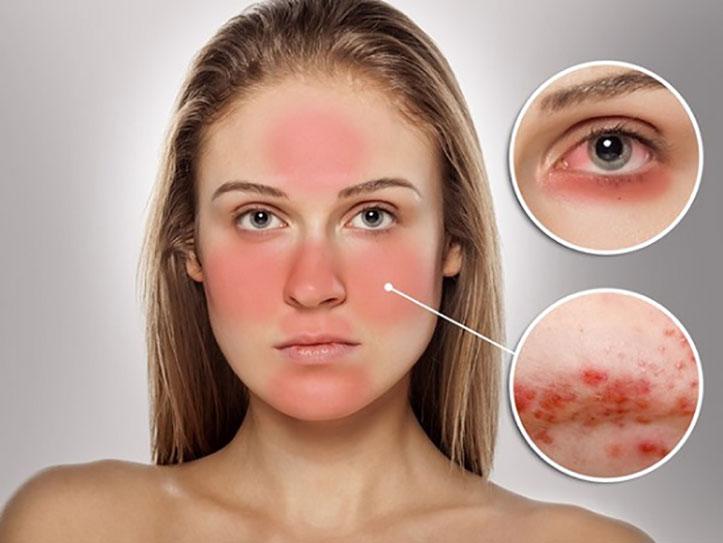 5. Uống collagen dị ứng, mẩn ngứa