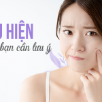 5 biểu hiện thừa collagen trong cơ thể
