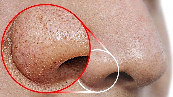 7 cách trị mụn cám ở mũi bằng kem đánh răng