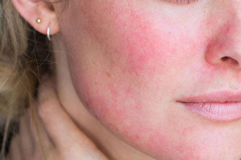 Biểu hiện của da bị khô