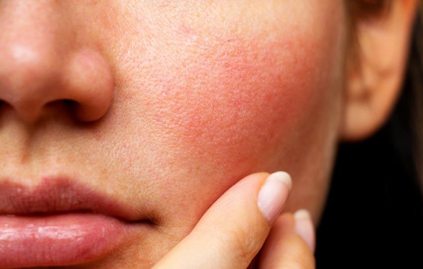 Cách chọn kem dưỡng ẩm cho da nhạy cảm