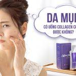 Collagen gây mụn vì sao? 5 nguyên nhân phổ biến nhất & cách khắc phục triệt để
