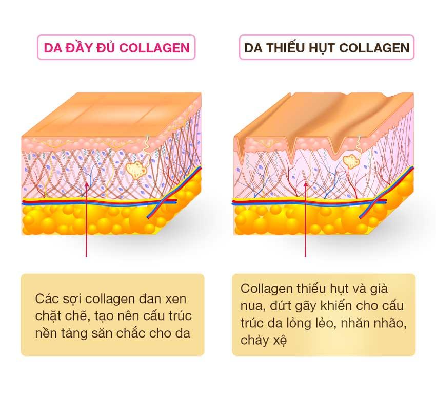 Uống collagen trị sẹo rỗ