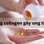 Collagen gây ung thư? Thực hư lời đồn uống nhiều collagen bị u xơ!