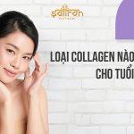 Loại collagen nào tốt cho tuổi 40? Top 5 được khuyên dùng nhiều nhất